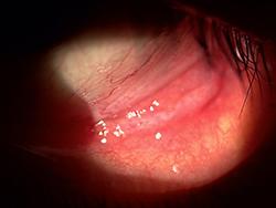 嚢胞 結膜